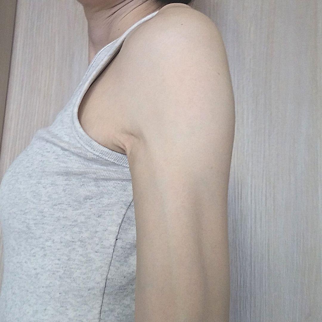 モデルナアーム9日目の画像